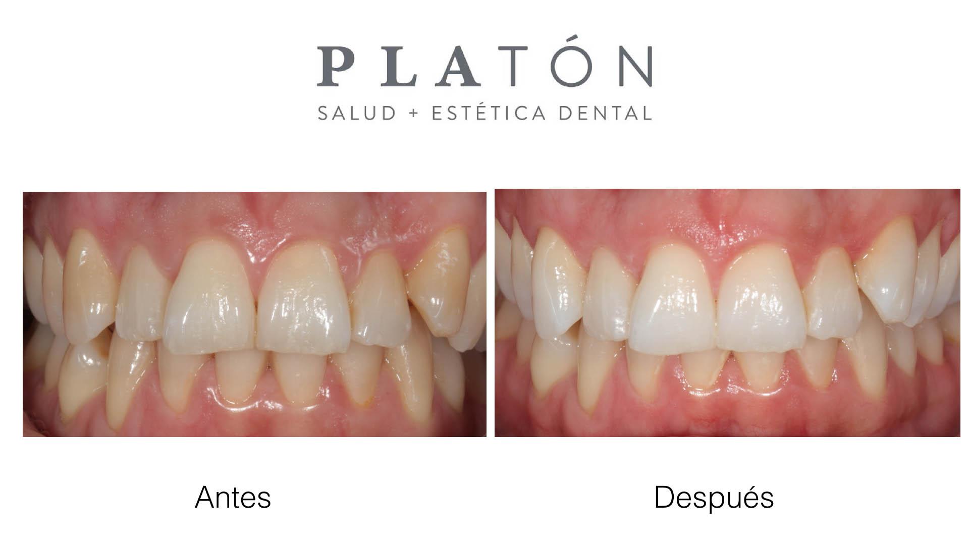 Blanqueamiento dental en Mallorca